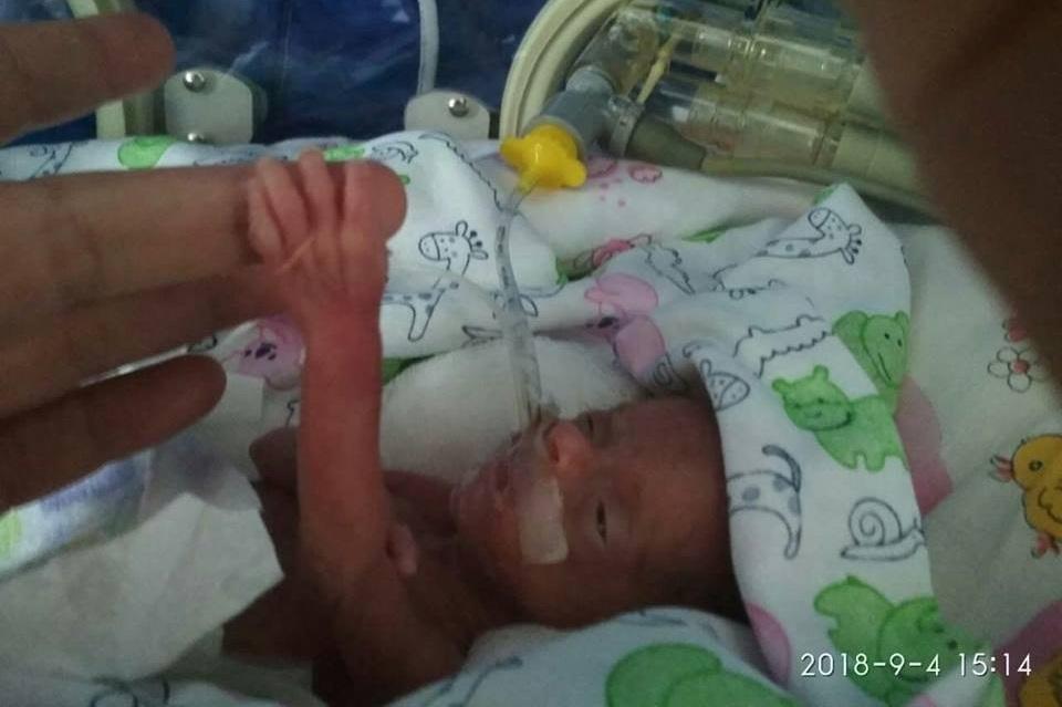 У Тернополі лікарі, які борються за життя новонародженої із вагою 390 грам