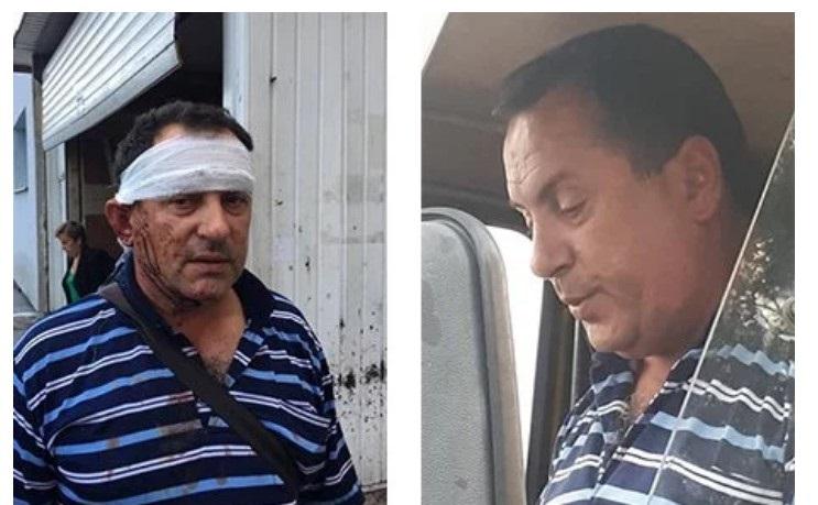 На фото зліва водій Роман Неділько, якого побили в Брюховичах. На фото справа цей же водій, коли на нього скаржились за відмову безкоштовно везти дітей з багатодітної сім'ї