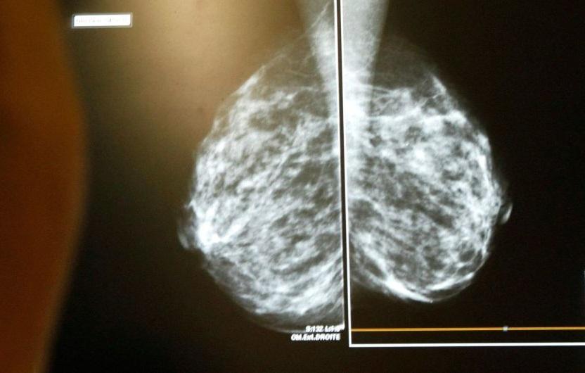 Рак – не вирок: у Дніпрі онкохворих успішно лікують за допомогою винаходу нобелівських лауреатів