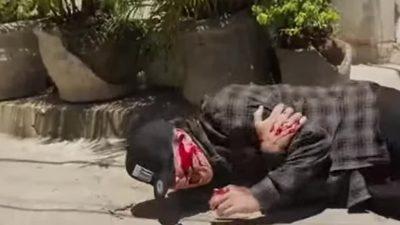 """Дмитра Комарова """"підстрелили"""" у Бразилії (відео)"""