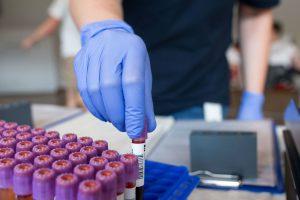 З літа в Україні можна буде безкоштовно робити тести на рак