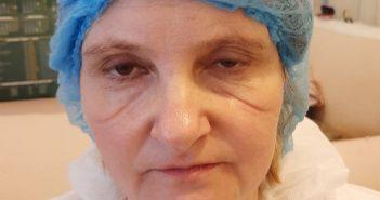 Фото київської медсестри зі шрамами від маски зворушило українців
